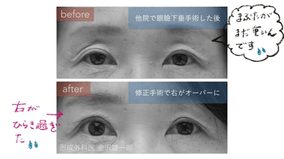 眼瞼下垂他院修正で右が過大開瞼