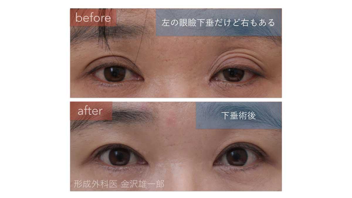 眼瞼下垂術前術後