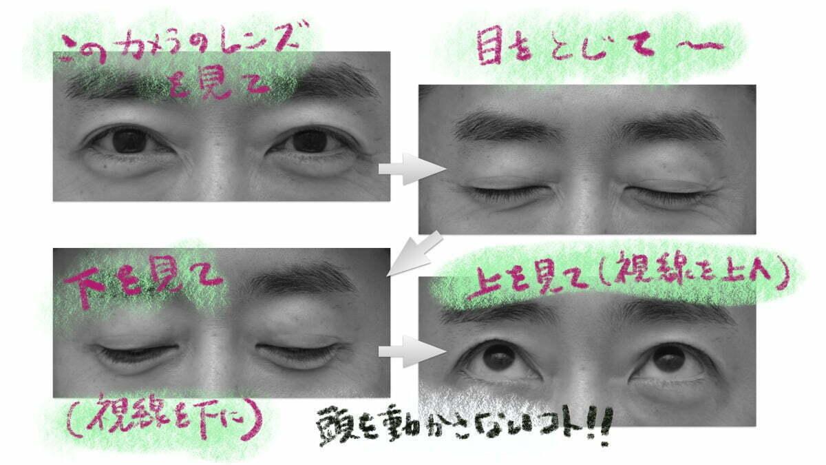 眼瞼下垂診療でとる写真