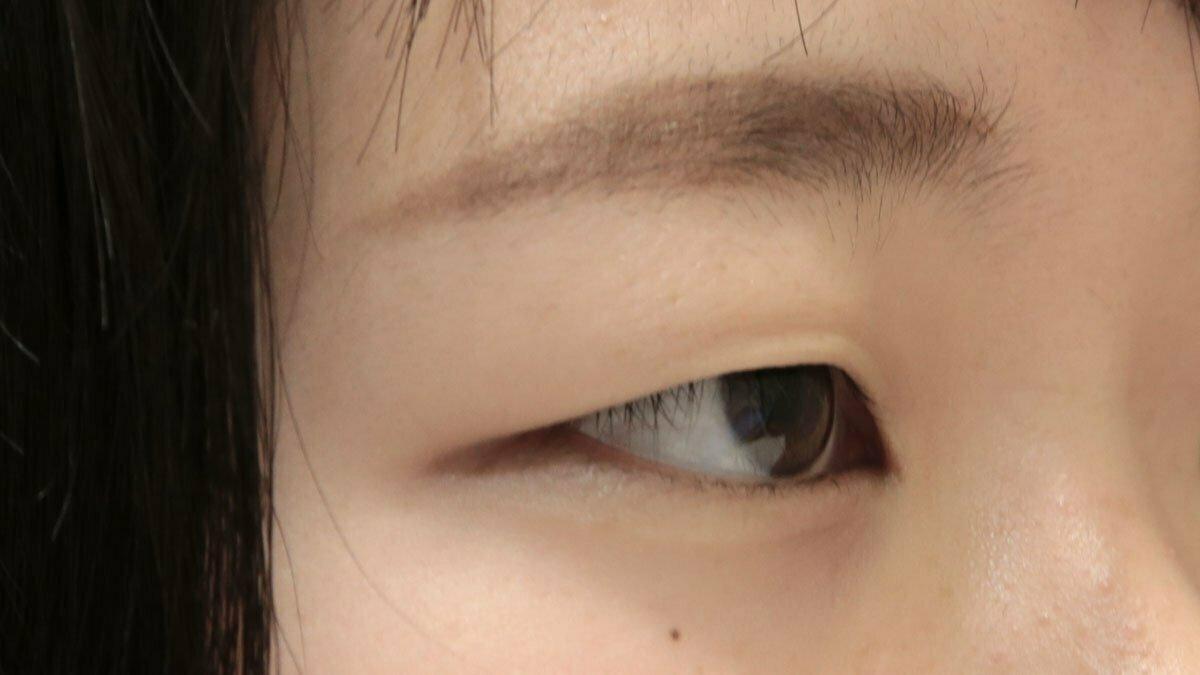下の重瞼線がない