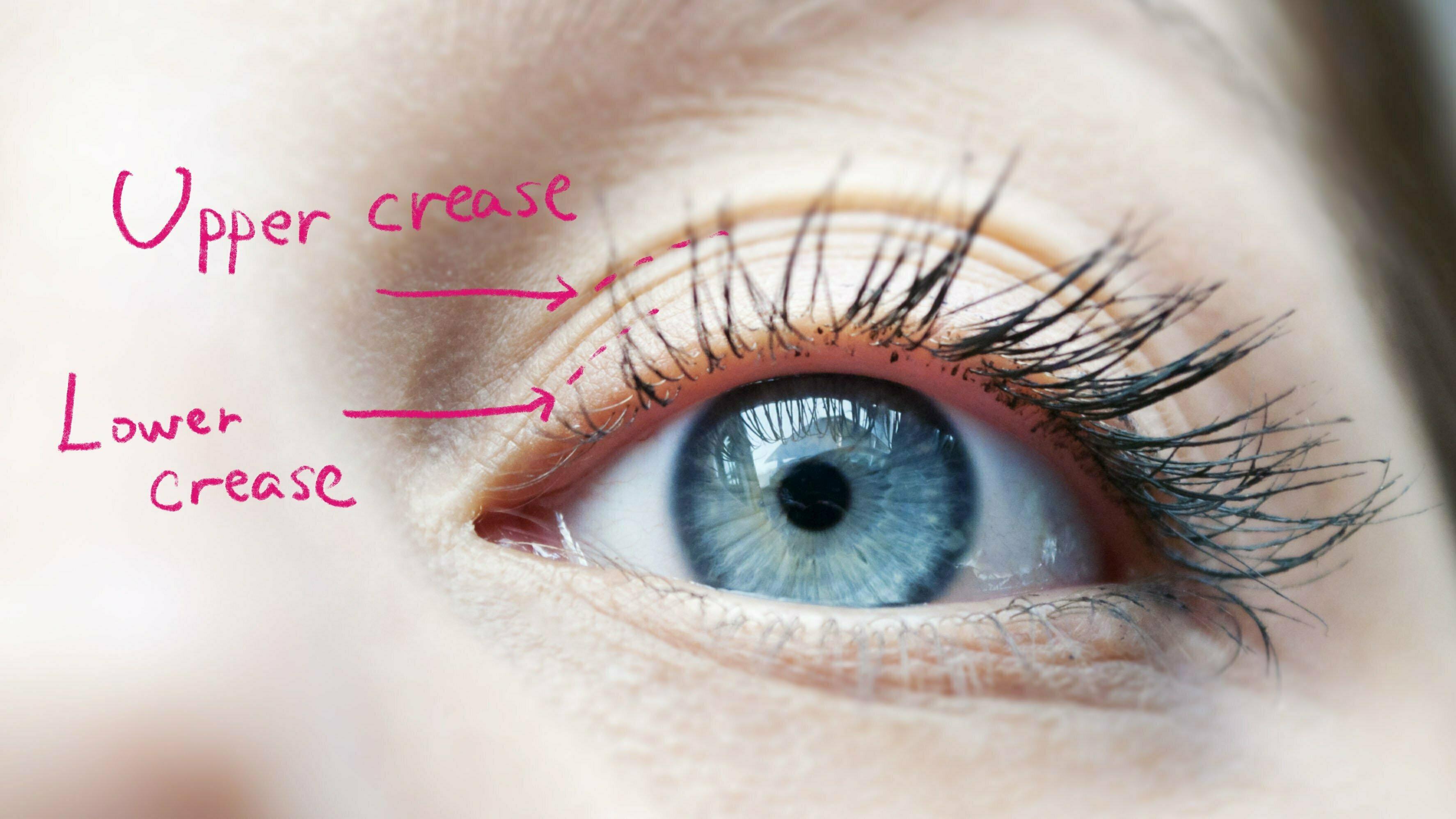 上と下の重瞼線