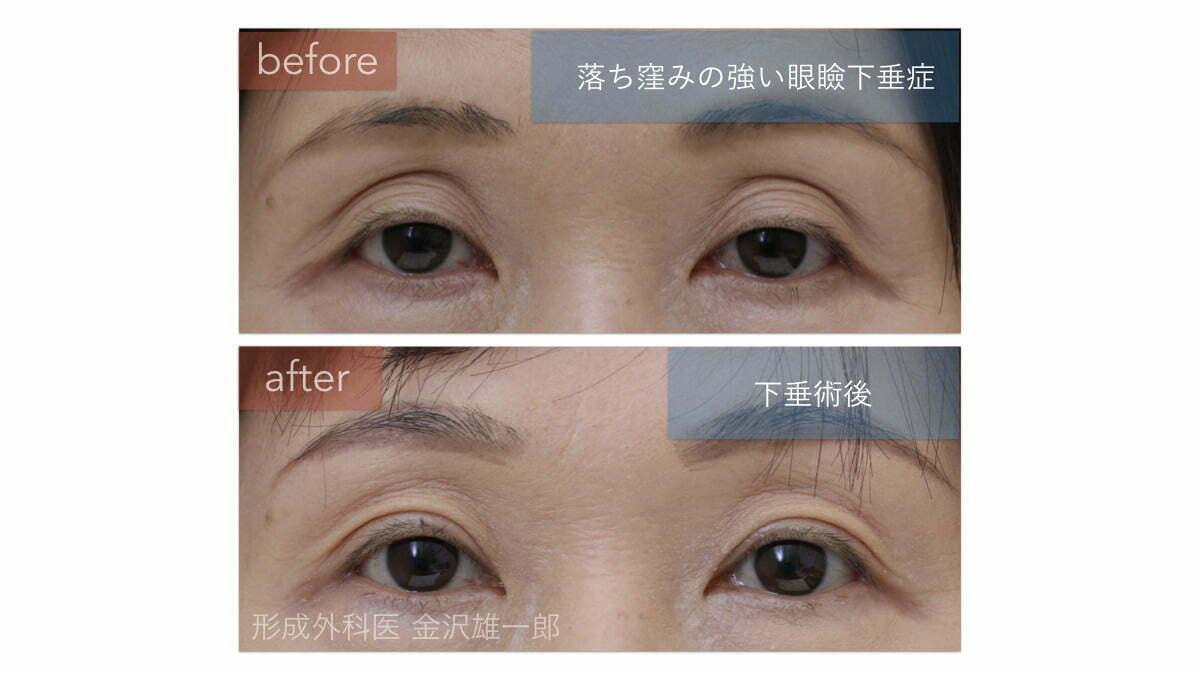 眼瞼下垂術前術後 目の上の落ち窪みが改善