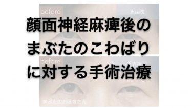 【顔面神経麻痺後遺症】顔面拘縮(こわばり)で目が小さくなることに対する治療