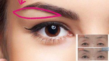【完全版】上眼瞼リフト(眉下切開)の適応、利点・欠点を4人のモデルケースと共に解説