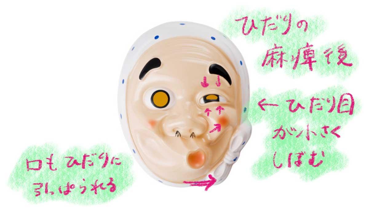 神経 麻痺 顔面